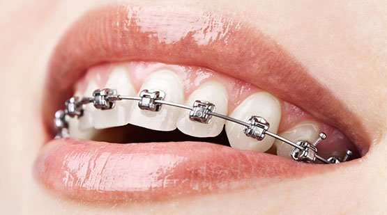 dental braces belmont wa