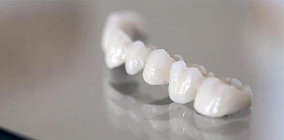 dental bridges belmont wa