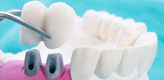 dental crowns belmont wa
