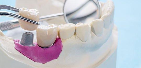 dental crowns blurb belmont wa