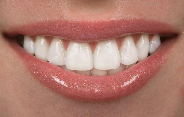 cheap cosmetic dentist