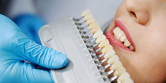 affordable dental veneers belmont wa