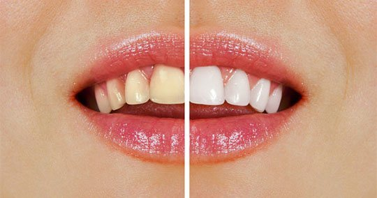 teeth whitening belmont wa
