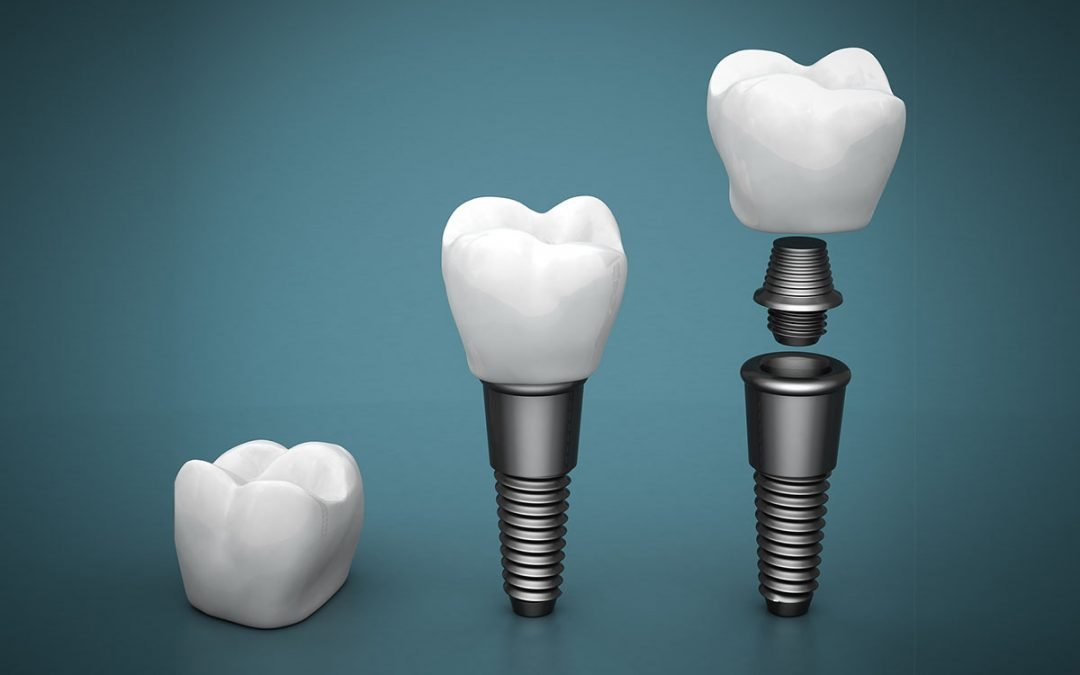 Top 8 Reasons Dental Implants are Long-Term Solutions to Missing Teeth