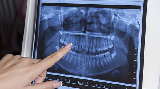 preparation for dental x-rays