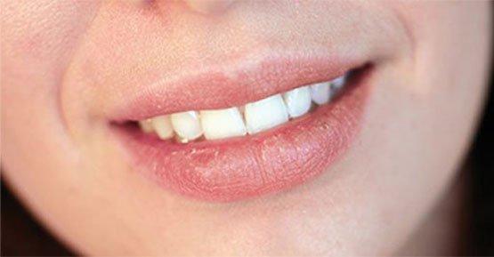 dry mouth belmont wa