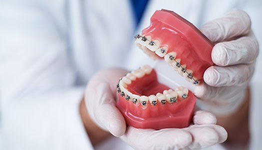 how-to-clean-your-braces-belmont-wa